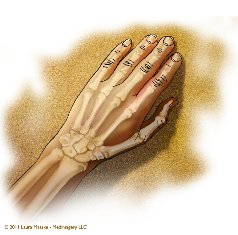 Information About The Anatomy Of The Hand Illustration Of Ligaments