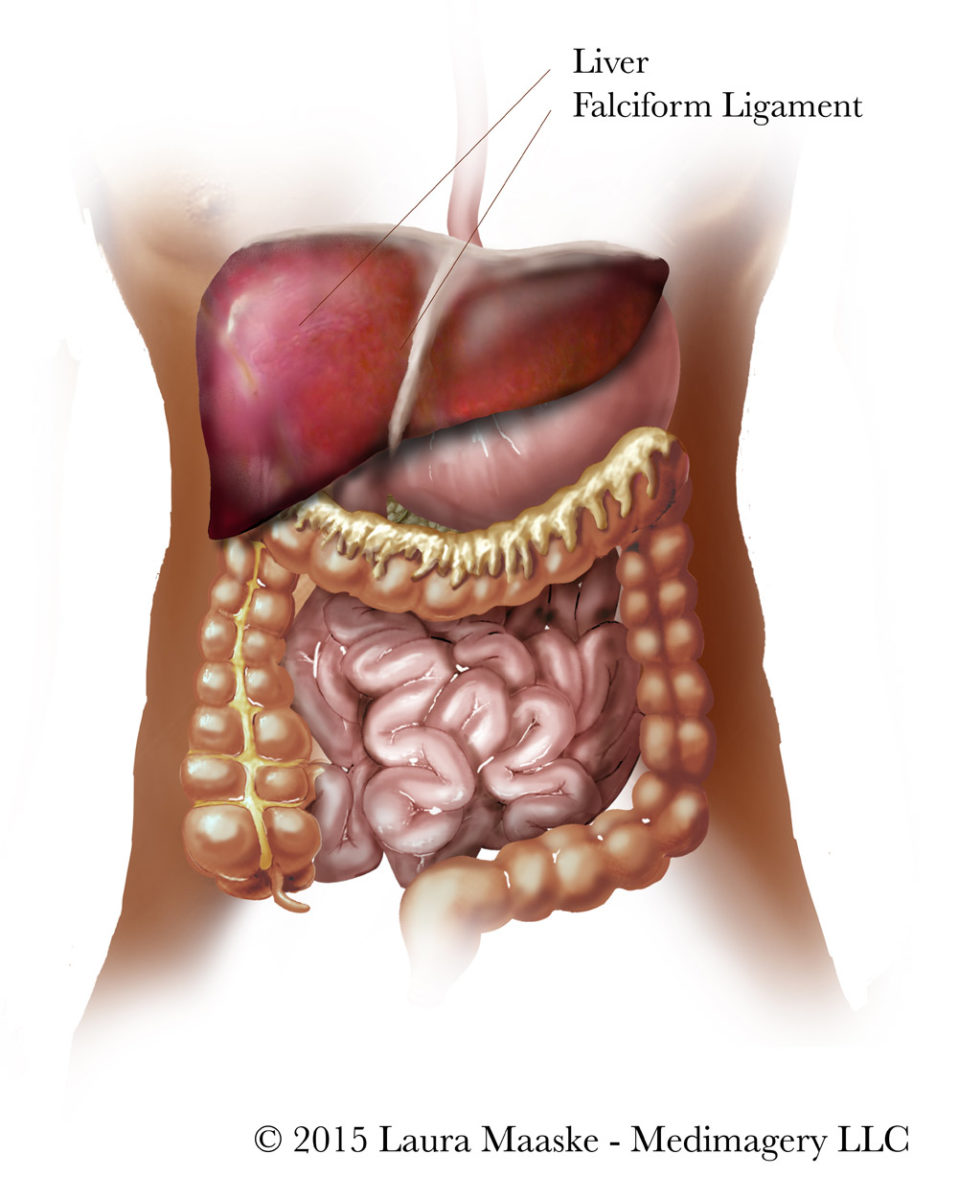 Liver Resection Illustrations Laparoscopic Left Lateral Liver